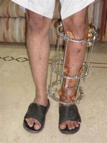 Ilizarov Surgery for Limb Lengthening :: Orthopaedic, Joint